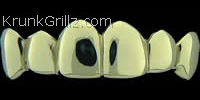 Polished Gold Grillz