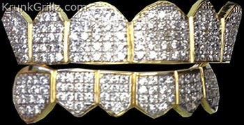 Prong Set Diamond Grillz