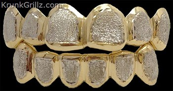 Grillz Custom Gold and Silver Teeth