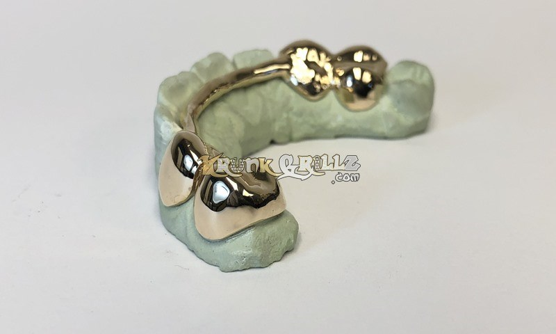 Grillz Solid Gold Custom 1