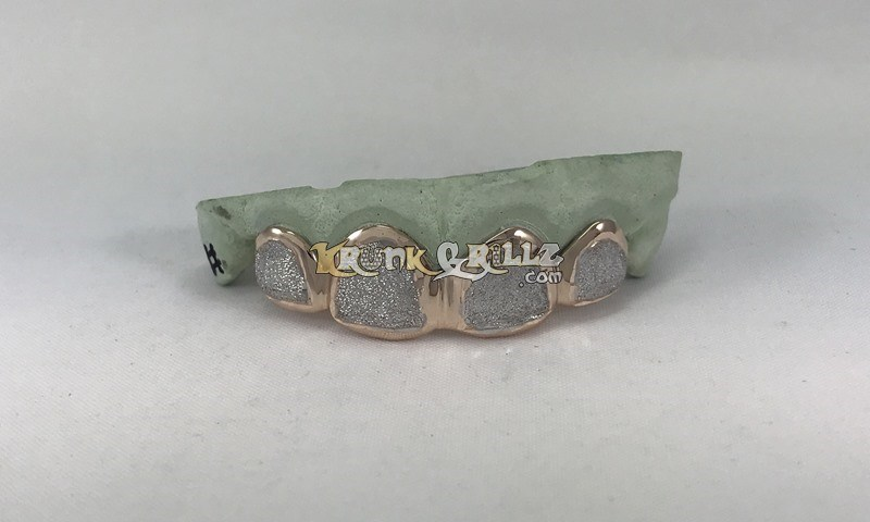 Grillz Krush Diamond Face  Custom 3