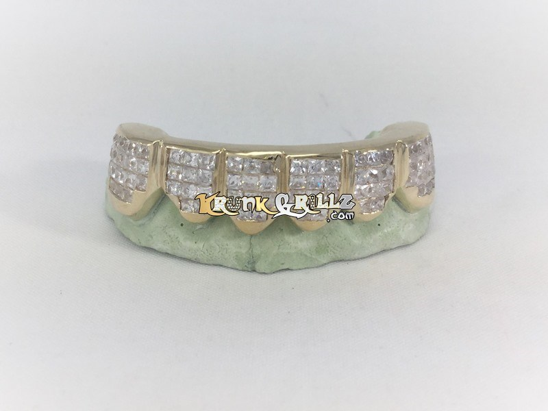 Grillz Invisible-Set Diamond Grillz Custom 1