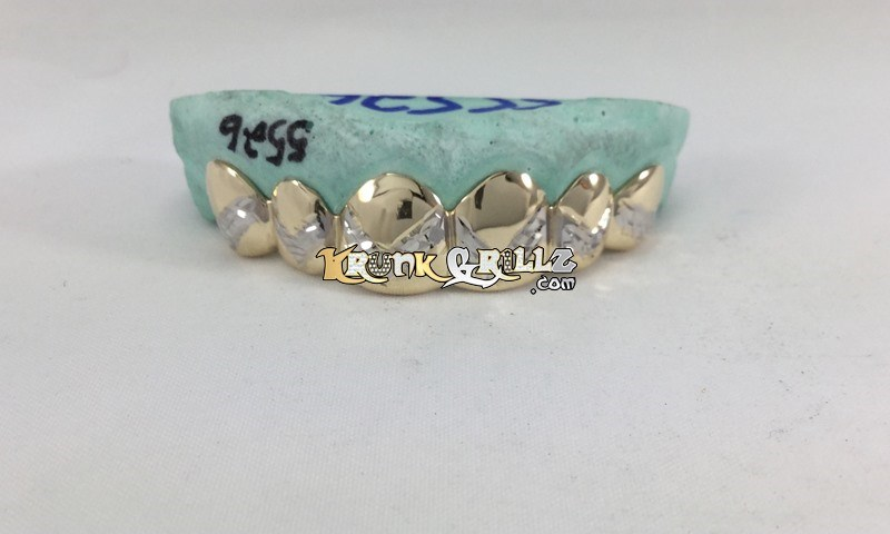 10kt gold teeth