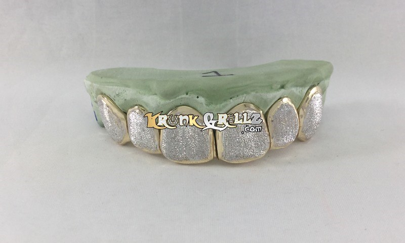 diamond dust grillz