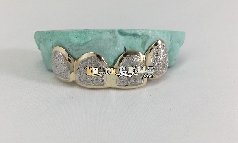 two tone gold grillz
